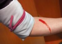 Как справиться с любым кровотечением