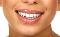 Як відбілити зуби самому в домашніх умовах