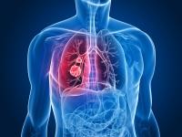 Універсальний засіб від раку легенів