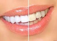 Як відбілити зуби самостійно
