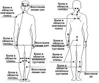 Точки акупунктури в голкотерапії